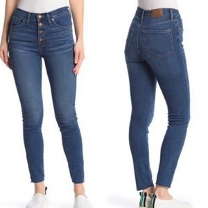Madewell Mid Rise Button Fly Skinny Jeans